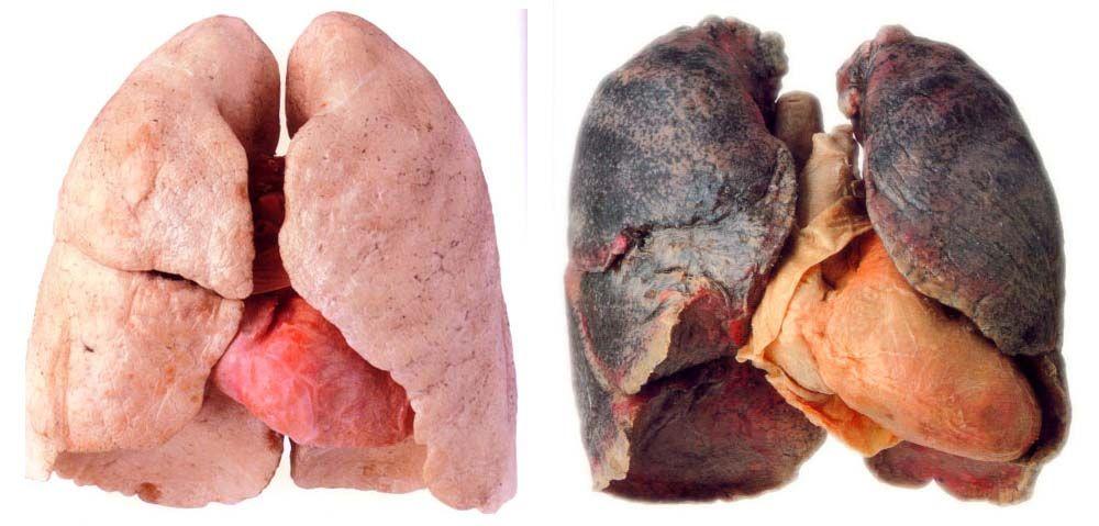 Dohányzó ember tüdeje)